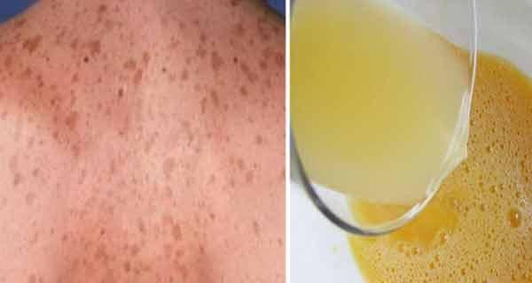 petele maro de pe piele pot fi estompate sau eliminate cu preparate din plante