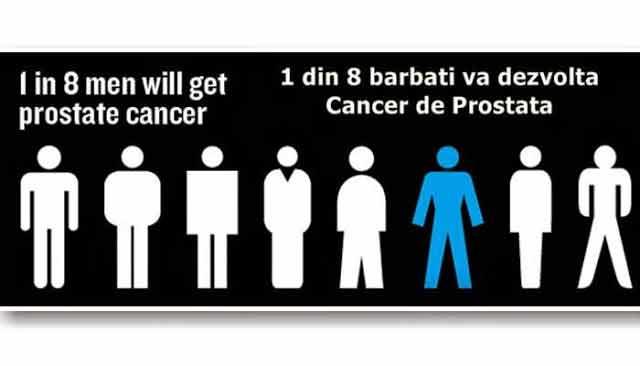 cancerul de prostata este foarte raspandit astazi