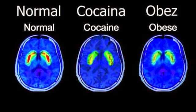 zaharul este mai adictiv decat cocaina