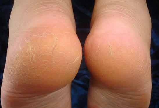 pielea crapata si bataturile pot fi vindecate pe cale naturala