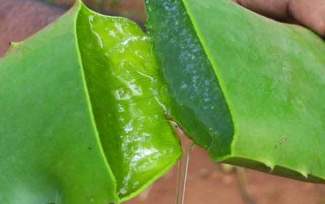 aloe vera este planta ideala pentru gestionarea psoriazisului