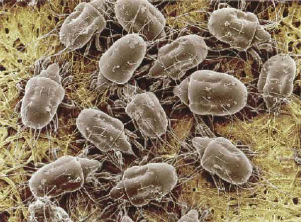 acarienii se fac responsabili de numeroase reactii alergice si boli respiratorii