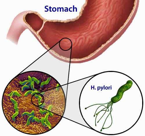 Cură naturală împotriva Helicobacter pylori, bacteria care duce la apariția ulcerului
