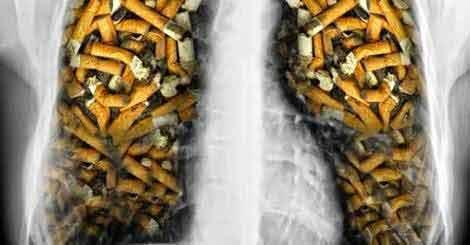 Nu vrei să renunți la țigări? Cel puțin curăță-ți plămânii!