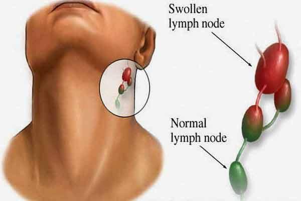 Pierderea în greutate severă și ganglionii limfatici umflați Umflarea ganglionilor limfatici