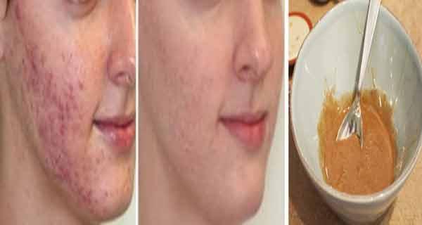 acneea poate fi tratata eficient cu miere de salcam si scortisoara