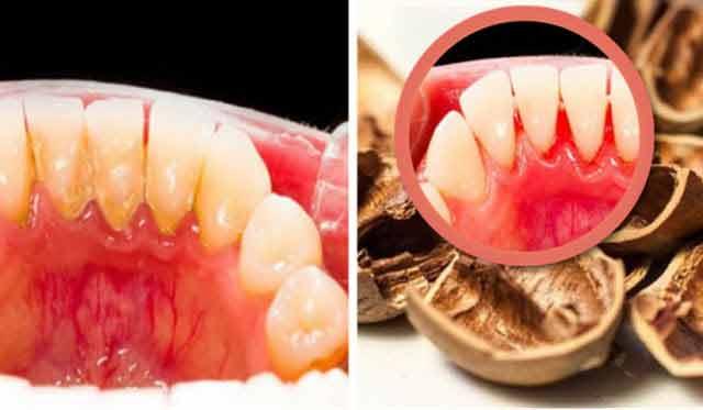 tartrul dentar poate fi prevenit si chiar inlaturat pe cai naturale
