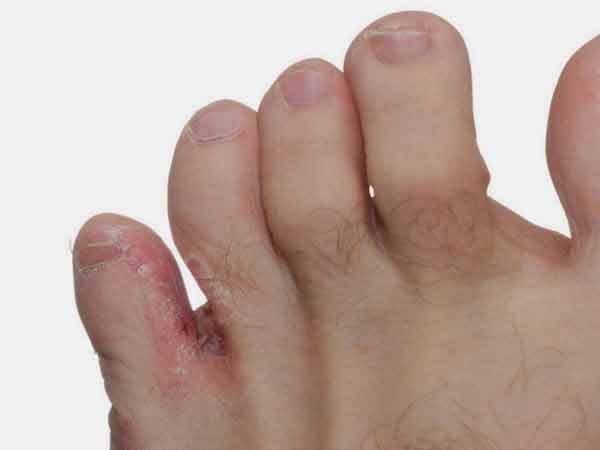Ciuperca piciorului cauze si tratament