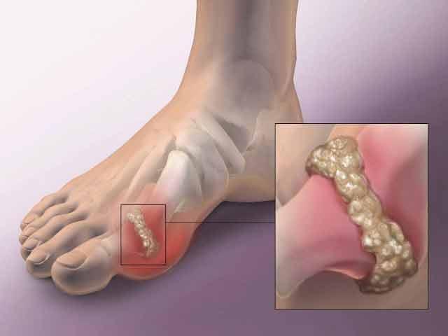 acidul uric este principalul responsabil pentru aparitia artritei si a gutei
