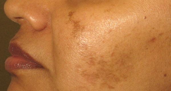 Scapă de petele maro de pe față folosind o rețetă naturală ce conține două ingrediente simple