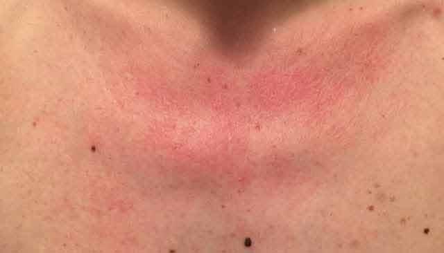 Ai pete roșii pe piept după ce ți-ai făcut duș, află acum ce se ascunde în spatele acestor simptome și cum poți să scapi de ele!