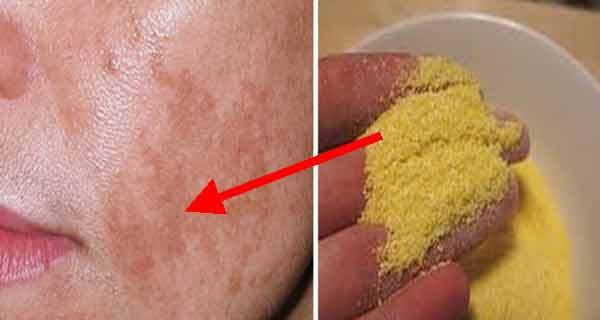 scrubul cu malai te ajuta sa elimini petele pigmentare si sa ameliorezi eczemele