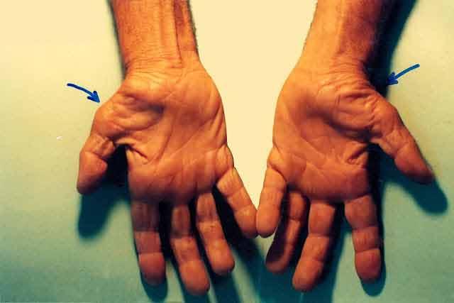 Scapă de sindromul de tunel carpian fără operație chirurgicală!