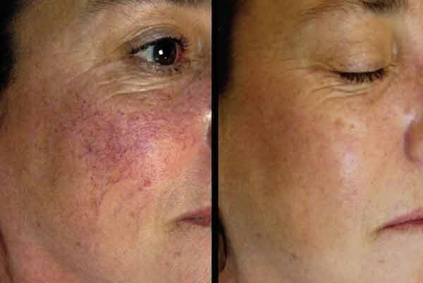 Cum poți trata capilarele sparte și hiperpigmentarea tenului?