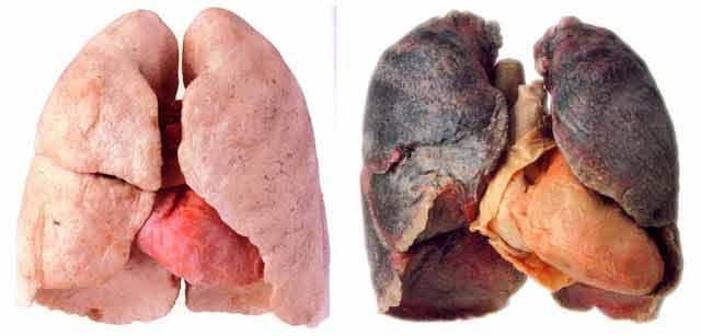 fumatorii sunt sfatuiti sa foloseasca period cure de detoxifiere a plamanilor