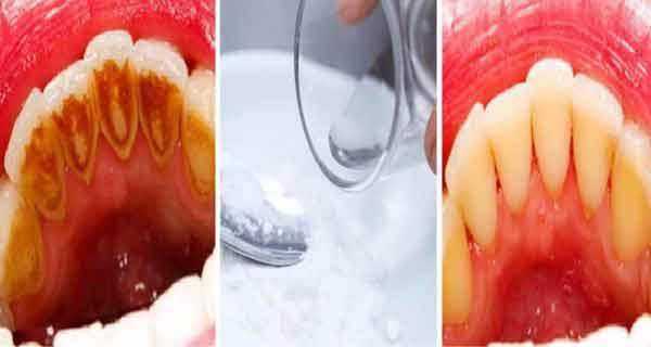 bicarbonatul si apa oxigenata elimina foarte eficient tartrul