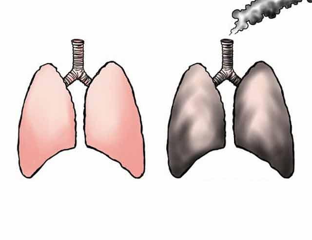 fumatorii sunt sfatuiti sa foloseasca frecvent cure de curatare si detoxifiere a plamanilor