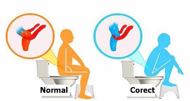 schimbarea pozitiei la statul pe vasul de toaleta usureaza golirea intestinelor