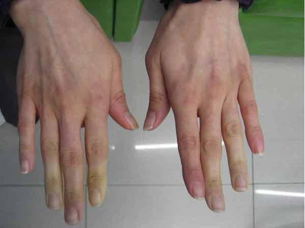Mâinile și picioarele reci înseamnă mai mult decât o circulație proastă – Iată semnalul de alarmă pe care ți-l trimite corpul!