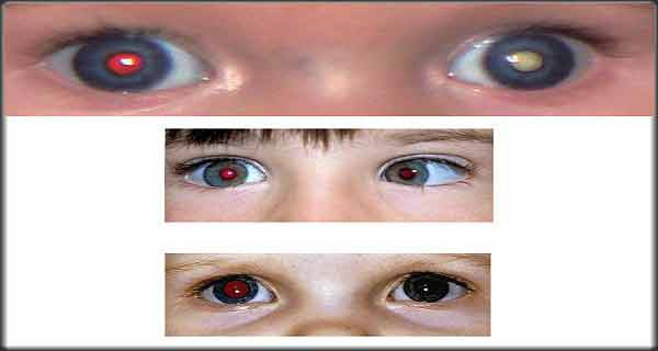 modificarile oculare la copii pot semnala imbolnavirea de retinoblastom