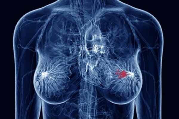 Cauza principală a cancerului de sân: Bei acest produs zilnic fără sa îi cunoști adevăratele efecte
