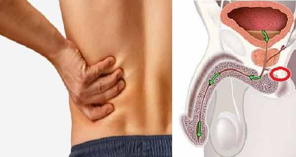 Am cancer la prostată? 12 semne timpurii pe care bărbații nu trebuie sa le ignore