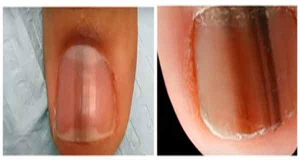 innegrirea unghiilor poate semnala existenta unei boli grave