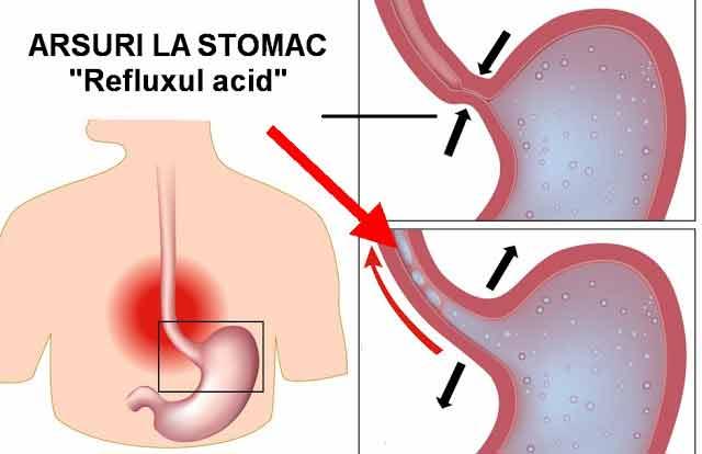 bicarbonatul de sodiu previne si trateaza eficient bolile de reflux