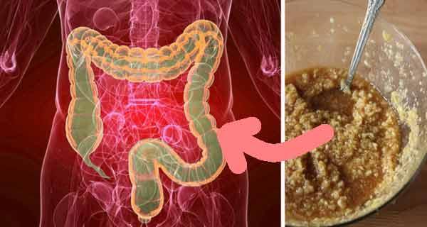 Elimină 15 kg de toxine din intestine și din vasele sanguine! Rețetă tradițională miraculoasă de detoxifiere!