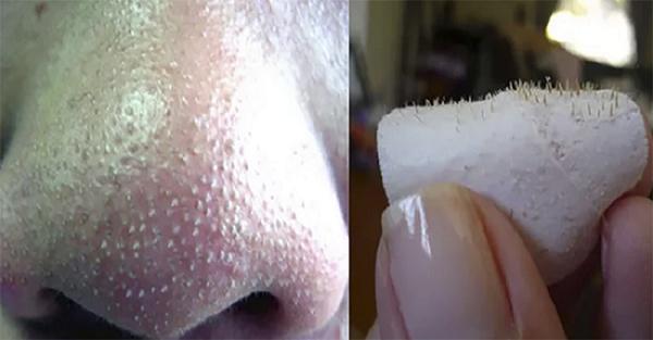 mierea si albusul de ou degreseaza pielea si combat punctele negre