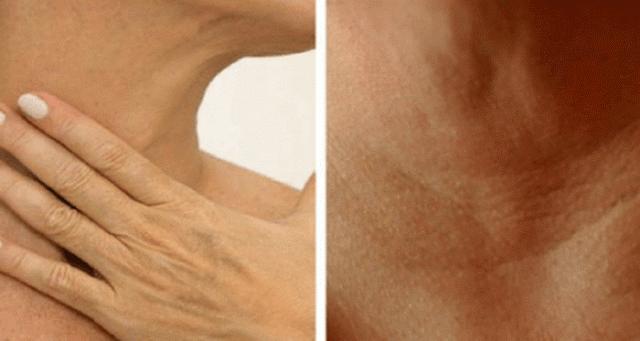 tratamentele cu lapte si miere intarzie imbatranirea pielii