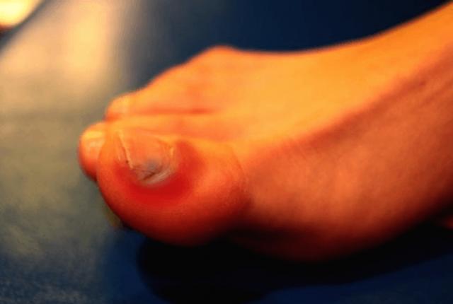 unghiile incarnate pot fi tratate eficient cu seva de aloe vera