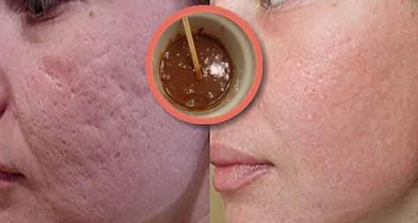 Această mască înlătură în mod incredibil petele, cicatricile lăsate de acnee și ridurile, după a doua folosire