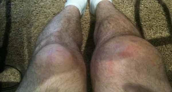 compresele cu fasole trateaza eficient apa la genunchi