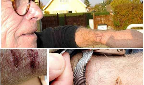Iată ce i s-a întâmplat acestei persoane care purta un ceas Apple! Îngrozitor..