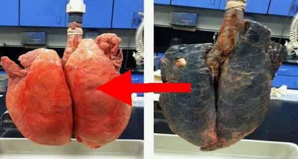daca nu reusesti sa te lasi de fumat, macar ia masuri sa reduci efectele sale nocive