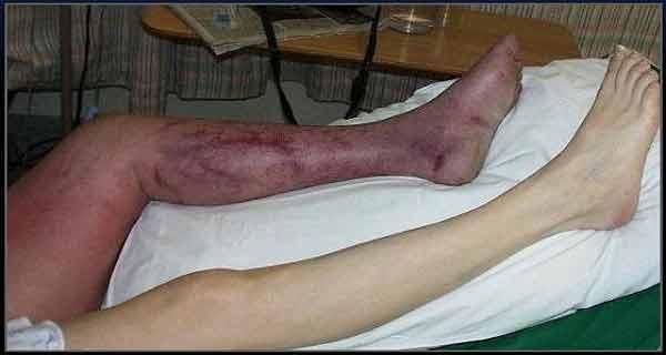 tromboza venoasa poate fi ameliorata sau chiar vindecat cu balsam de castane