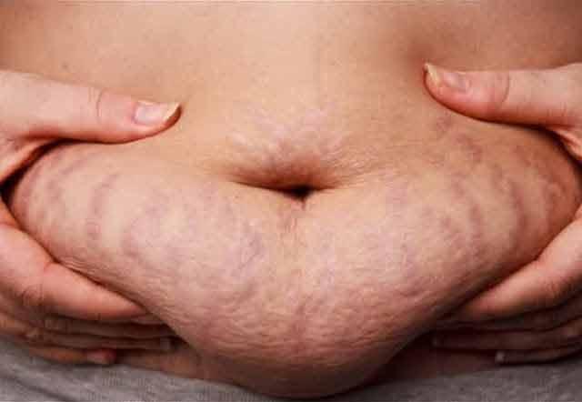 masajul cu ulei si aplicatiile de aloe te pot scapa rapid de vergeturi