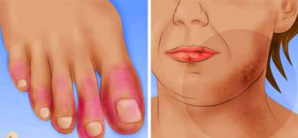Vitiligo si artrita reumatoida