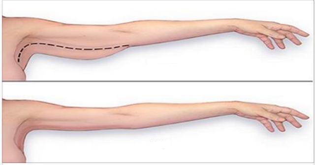 Pierderea masei musculare în brațele superioare |