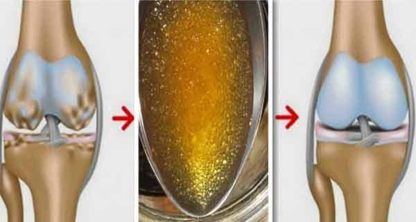 Cum restabilim cartilajele în doar o săptămână cu ajutorul gelatinei