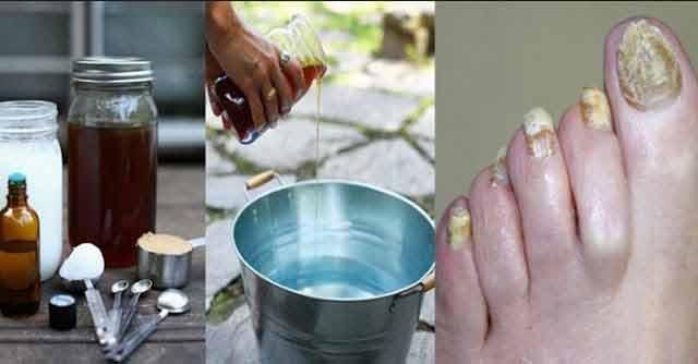 vindeca micozele cu doua ingrediente