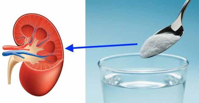 de acum vindeci rinichii cu bicarbonat