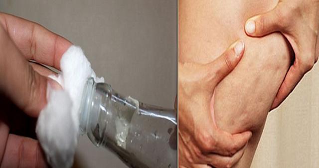 Scapă de celulită în cel mai ușor mod – Consumă această băutură zilnic și pregătește-ți corpul pentru vară
