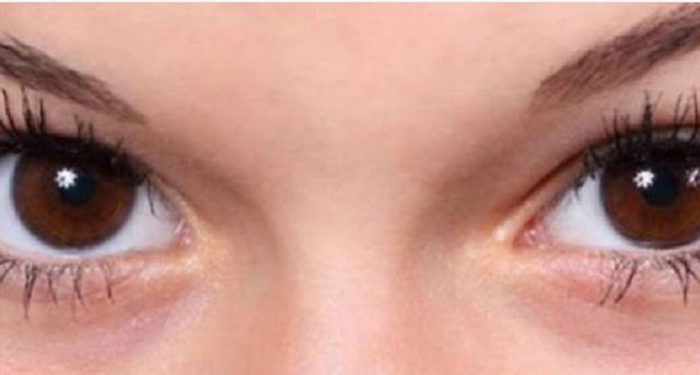iata de ce apar cercurile negre de sub ochi