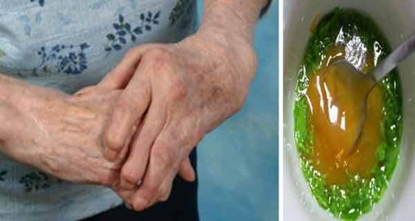 aceasta femeie s-a vindecat singura de reumatism