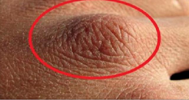 Priveste-ti cu atentie palmele: iti pot indica daca suferi de cancer!