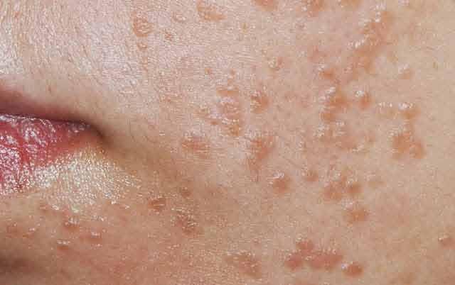rostopasca vindeca bolile de piele