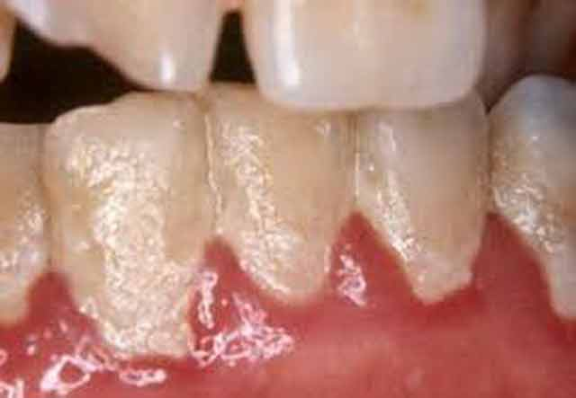 Ești sigur că îți perii dinții în mod corect? Iată o metodă de periaj care îndepartează placa bacteriană de trei ori mai eficient!