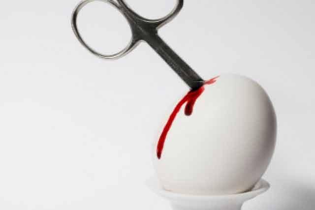 După ce vei vedea asta, nu știu dacă te mai lasă inima să faci avort! Imagini tulburătoare!